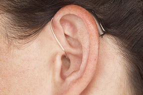 Reciever-In-Canal Hearing Aid (RIC)