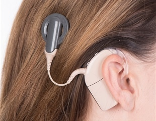 hearing aids singapore cochlea implant