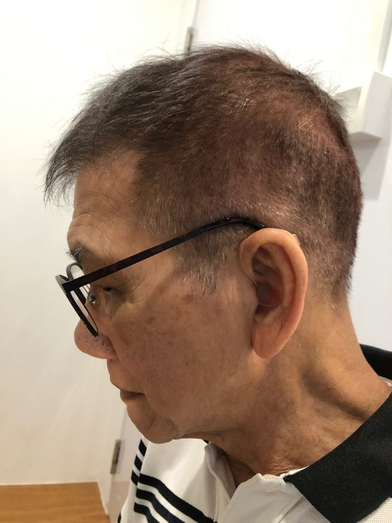 Mr Lee Customer with Quattro hearing aids