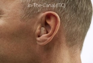 in-the-canal-custom-hearing-aid