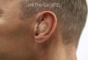 in-the-ear-custom-hearing-aid