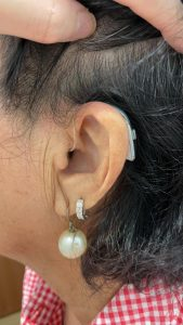 rechargeable hearing aids singapore on ear
